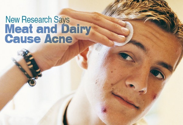 New Research Says Meat And Dairy Cause Acne Health News