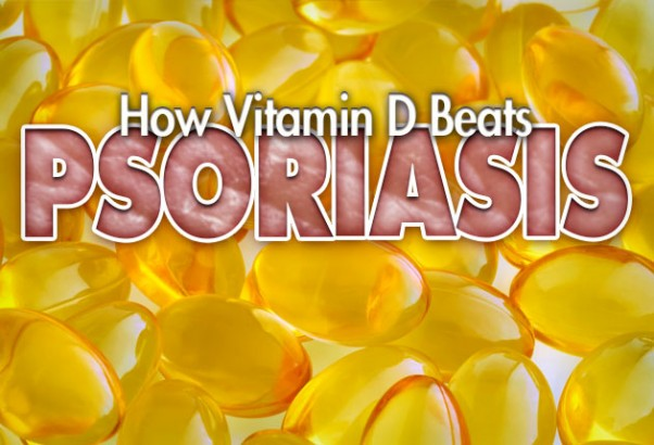 How Vitamin D Beats Psoriasis Health News From