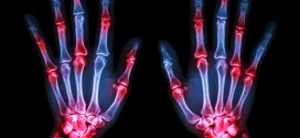 Are You Tired Of Arthritis Pain?