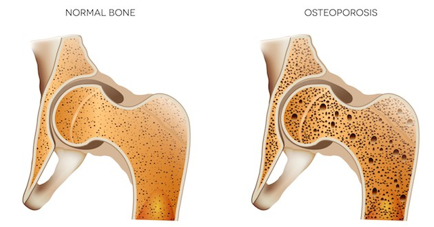 Osteoporosis: A Natural Approach