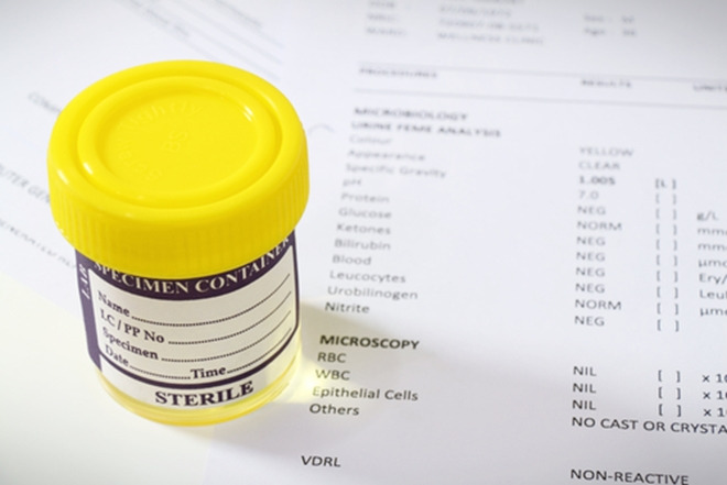 Specialists at John Hopkins Medicine have created a new urine test that can detect high-risk cervical cancer.