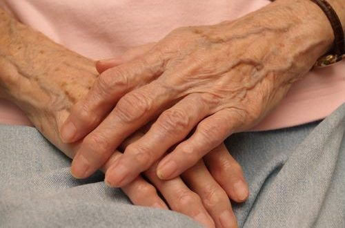 Here are a few ways to cope with arthritis.