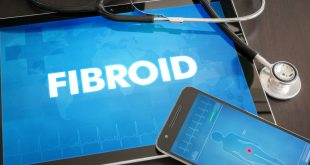 Managing your fibroid health.
