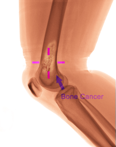 illustration of bone cancer